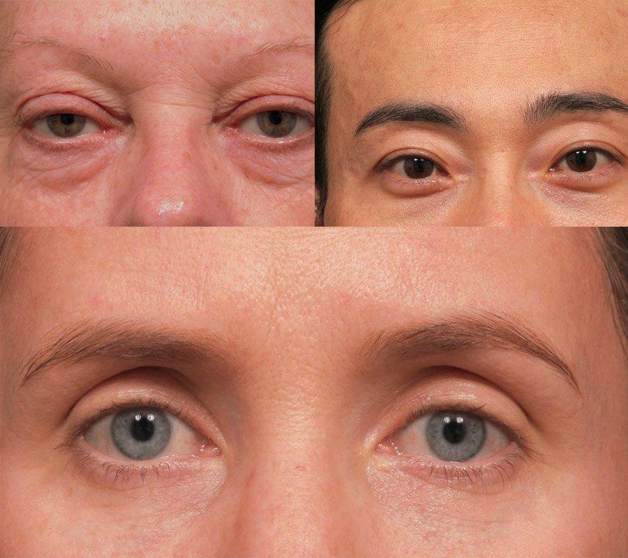 sunken eyes meaning - 900×800